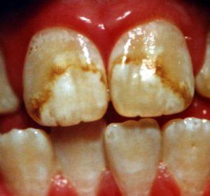 Dental Fluorosis Dental Fluorosis